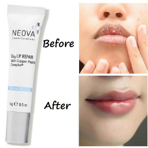 CU3 Lip Repair